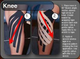 rocktape knee edema
